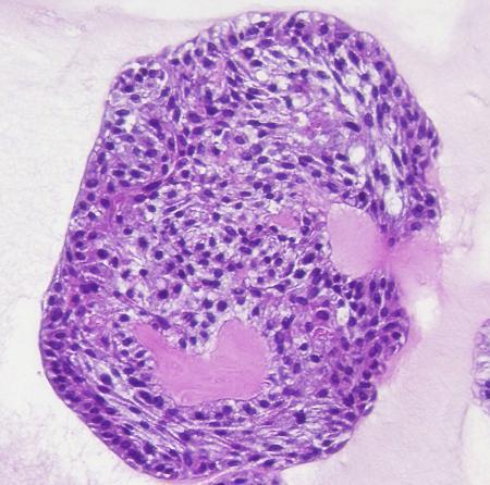 京都大iPS細胞研究所などのチームが作製したミニ気管支(同研究所提供)